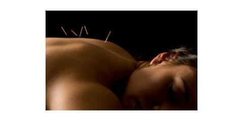 Sleep Better With Treatment From Olo Acupuncture, Manhattan, New York