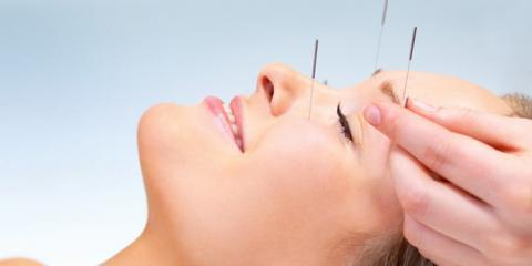 Olo Acupuncture Explains The Benefits of Acu-Facial Rejuvenation, Manhattan, New York
