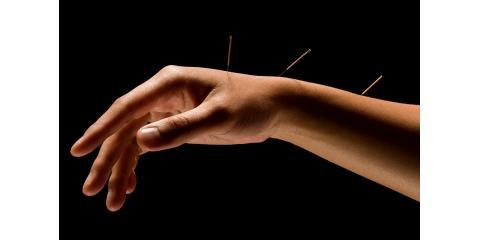 5 Steps to Increase The Success of Your Acupuncture Treatment, Manhattan, New York