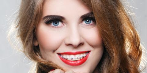 Onalaska Dentist Explains What to Expect When Your Adult Braces Come Off, Onalaska, Wisconsin