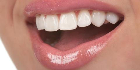 Dental Implants Vs. Bridges: Which Is Right for You?, Onalaska, Wisconsin