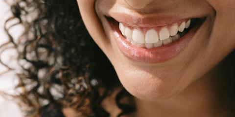 Teeth Whitening Special, Bronx, New York