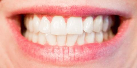 Get Sturdier Dentures With the Support of Dental Implants, Frederick, Maryland