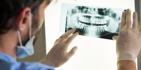 5 Tips for Recovering After Oral Surgery for Wisdom Teeth Removal, Jacksonville, Arkansas