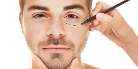 4 Amazing Benefits of Facial Plastic Surgery, Orange, Connecticut