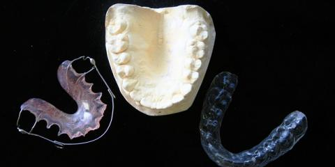 Getting Invisalign Braces? Fairfield's Dental Pros Explain the Process, Fairfield, Ohio