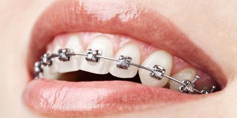 3 Tips for Avoiding Orthodontic Emergencies, Potomac, Maryland