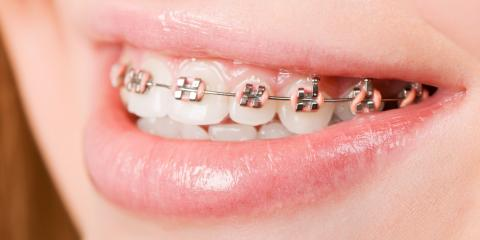 Discover the History of Orthodontics Over the Years, Lincoln, Wisconsin