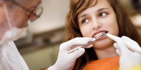 How to Deal With Orthodontic Emergencies , Potomac, Maryland