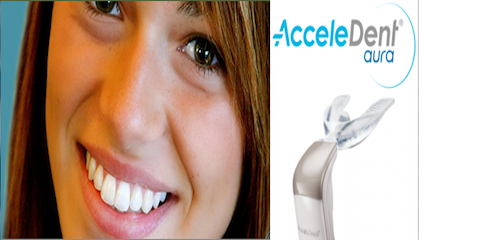 AcceleDent® Aura Makes Metal Braces Work Faster With Less Pain, Anderson, Ohio