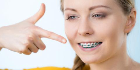 After Orthodontics: What You Can Expect When Your Braces Come Off, Kenton, Ohio