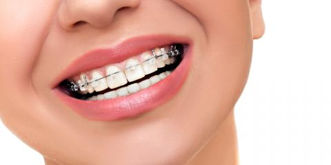 Orthodontics: The Perfect Way to Straighten Your Smile, New Richmond, Wisconsin