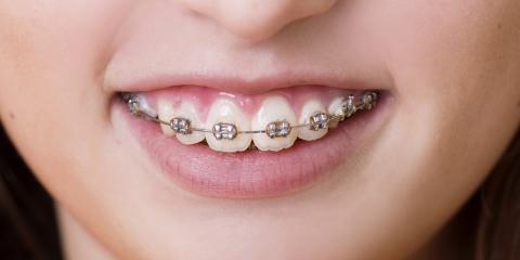 The Basics of the Teeth Straightening Process, Gaithersburg, Maryland