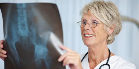 Orthopedic Health Experts Explain How to Prevent and Treat Osteoporosis, Calhoun, Georgia