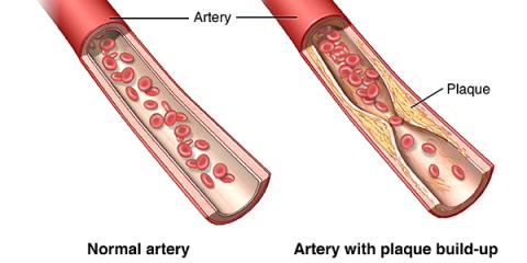 PERIPHERAL VASCULAR DISEASE AT PCNY, New York, New York