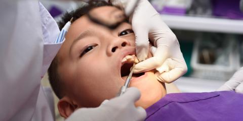 3 Dental Care Tips to Prevent Tooth Decay in Children, Honolulu, Hawaii