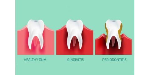 What Causes Receding Gums And How To Stop It, North Branch, Minnesota
