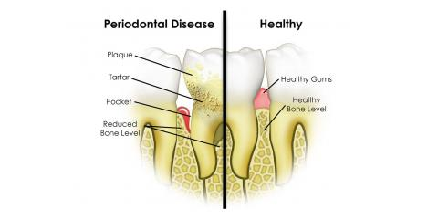 Causes and Prevention of Periodontal Disease, Middlebury, Connecticut