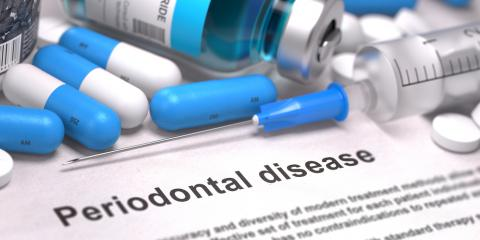 Kodiak Dentists Explain 3 Common Causes of Periodontal Disease, Kodiak, Alaska