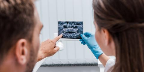 FAQ About Dental X-Rays, Perry, Georgia