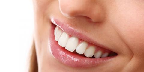 What Is Cosmetic Dentistry & How Can It Help You?, Perry, Georgia