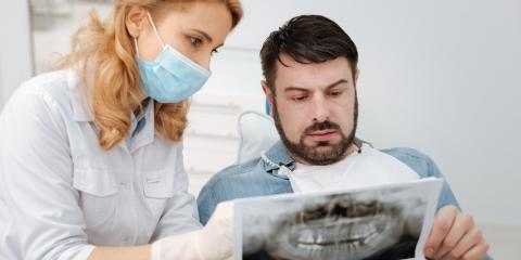 5 Telltale Signs You Need a Root Canal, Perry, Georgia