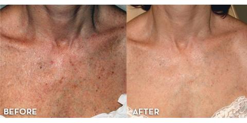 Neck And Chest Skin Rejuvenation. Call today 561-935-8000, Lake Worth, Florida
