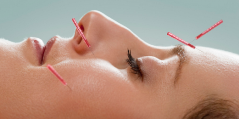 South Reno Acupuncture Offers Time-Tested Healing Through Acupuncture, Reno Southeast, Nevada