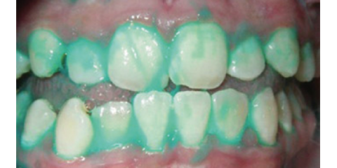 Plaque Identifying Toothpaste Significantly Reduces Dental Plaque And Inflammation Throughout The Body, North Branch, Minnesota