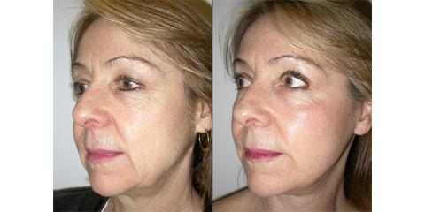 Skip The Costly Face Lift, & Try One of These Affordable, Non-Surgical Procedures Instead, Yonkers, New York