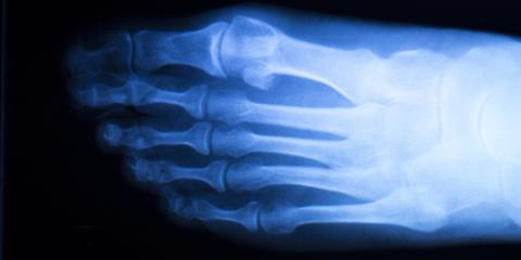 What Is Enchondroma & How Can a Podiatrist Help?, Springfield, Ohio