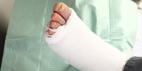 Podiatrists Discuss How Diabetes Can Cause Foot-Related Conditions, Cincinnati, Ohio