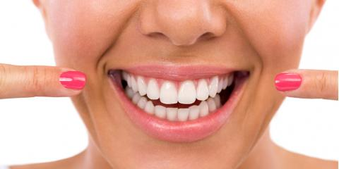 Porcelain Veneers—What They Are & How They Brighten Your Smile, Kailua, Hawaii