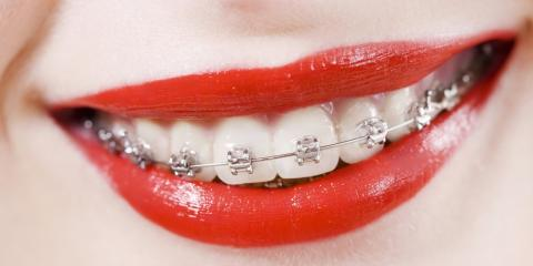 Are Adult Braces Right for Me?, Potomac, Maryland