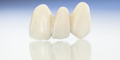 3 Ways Dental Veneers Can Improve Your Smile & Confidence , Kalispell, Montana