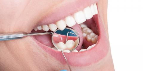 3 Gross Things Removed from Your teeth after 1 Cleaning, St. Charles, Missouri