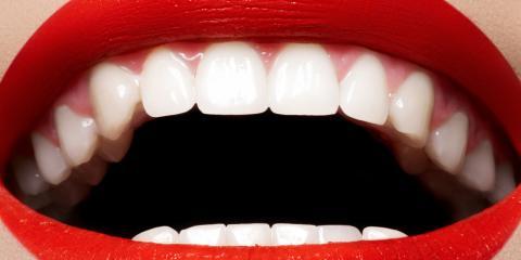 Get Your Smile Back: How Restorative Dentistry Helps Repair Teeth & Gums, Honolulu, Hawaii