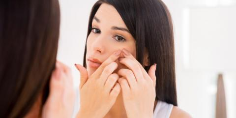 4 Acne Treatment Options Princeton's Best Dermatologist Recommends, Princeton, West Virginia