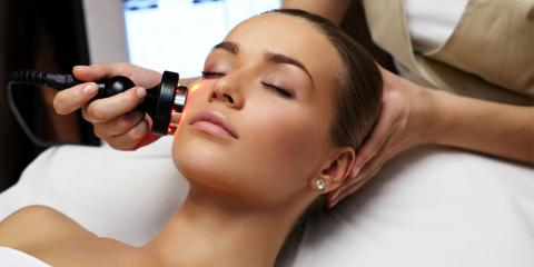 4 Benefits of Laser Resurfacing From Princeton's Skin Care Treatment Experts, Princeton, West Virginia