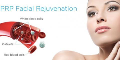 Platelet Rich Plasma Facial Rejuvenation, Lake Worth, Florida