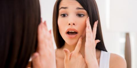 3 Triggers for Adult Acne Flare-Ups, Honolulu, Hawaii
