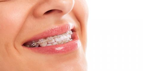 How Invisalign® Works & 3 Benefits to Using This Method, Potomac, Maryland