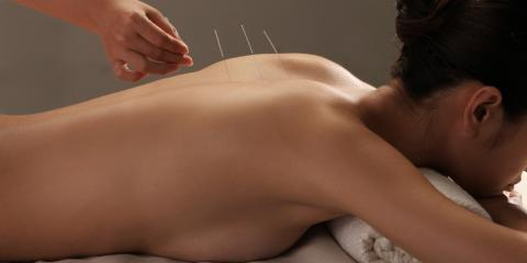 Everything You Need to Know About Acupuncture Treatment, Reno Southeast, Nevada