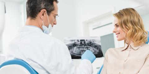 How Have Dental Fillings Changed Over the Years?, Rhinelander, Wisconsin