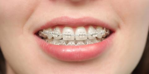 Are Traditional Braces a Better Solution Than Invisalign®?, Richmond, Kentucky