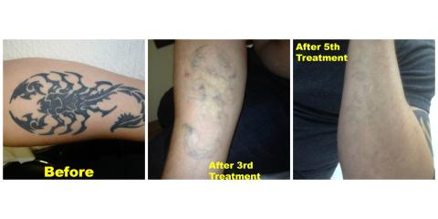 East coast laser tattoo removal explains why location for Getting a tattoo removed