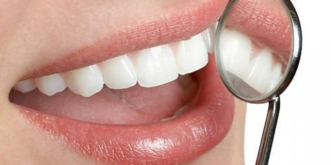 Wisconsin's Best Dentists Share 5 Benefits of Invisalign Braces , Ripon, Wisconsin