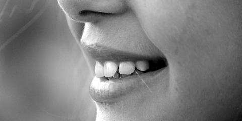 4 Tips to Help You Care for Your Dental Bridges in Rochester, Irondequoit, New York