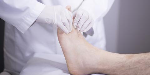 Foot Doctors Offer the Top 3 Tips for Toenail Fungus Prevention, Gates, New York