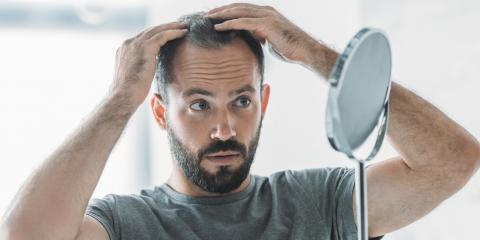 5 FAQ on Hair Transplantation, Rochester, New York
